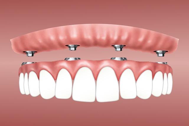 esquema de un implante dental
