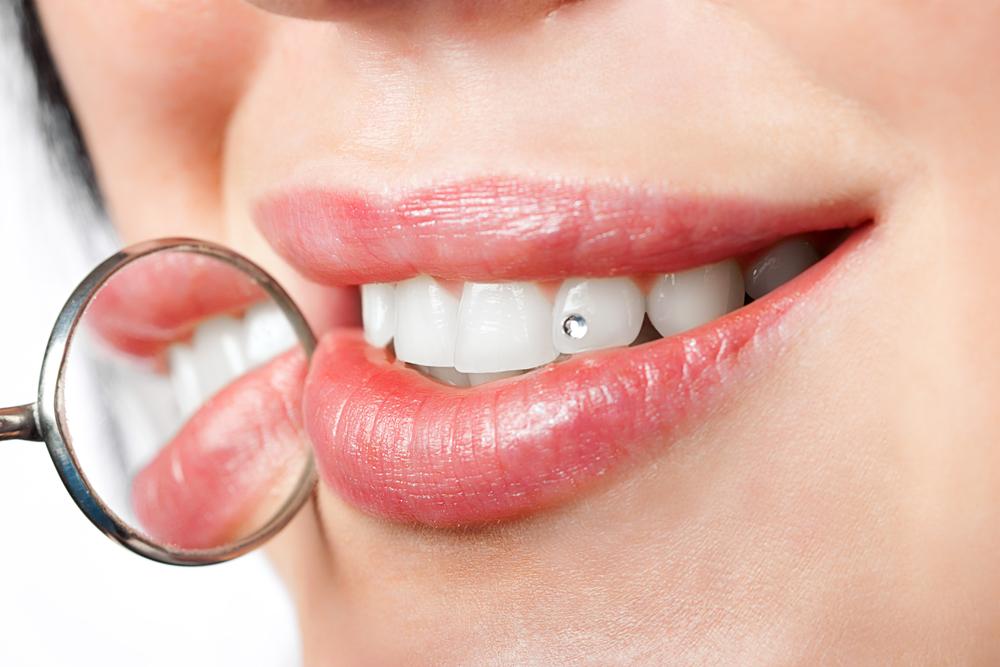 Joya dental, brillante dental