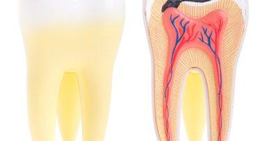 Muerte del nervio dental
