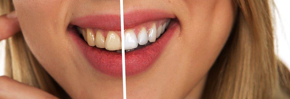 dientes amarillentos