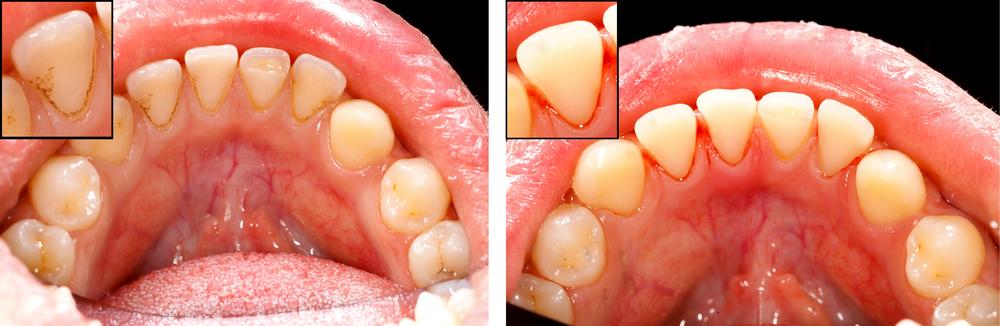 periodoncia y diabetes