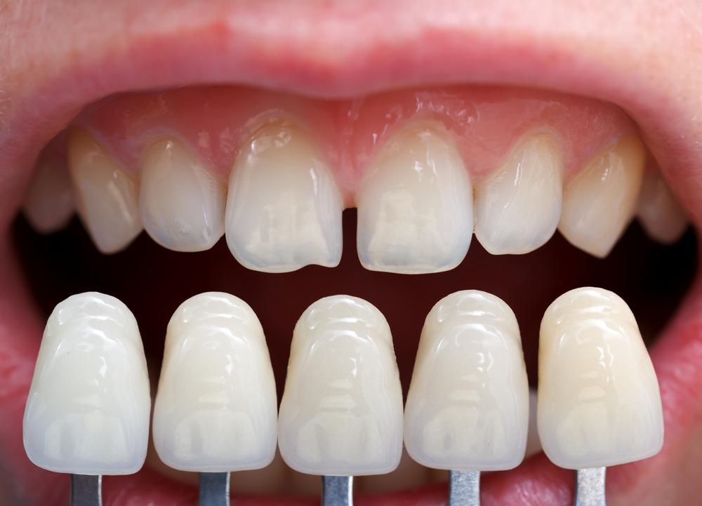 comparación entre coronas dentales y carillas dentales