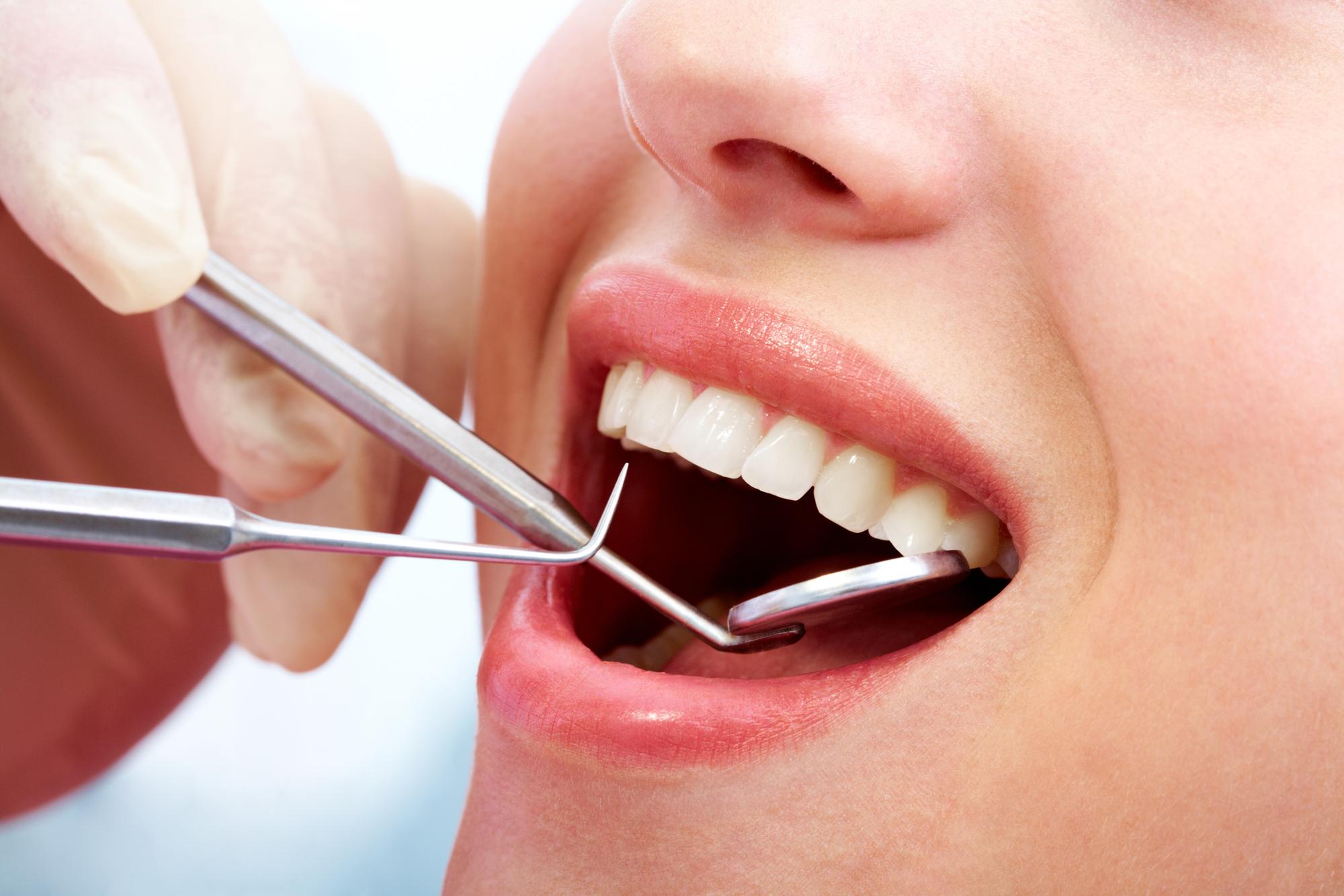 por qué hacerte una revisión en el dentista